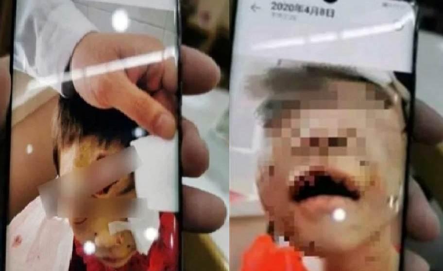Feature Image Kejamnya Ibu Tiri, Tega Gunting Bibir Bocah Ini (Foto China Press)