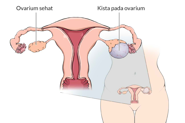 Deretan Makanan dan Minuman yang Menyebabkan Kista Ovarium pada Rahim Wanita